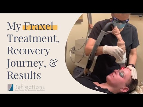 My #fraxel journey: treatment, recovery diary, & results