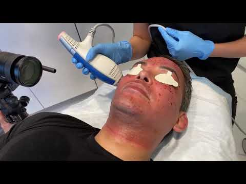 Clear brilliant laser to look younger | male facial rejuvenation part 4 | dr. jason emer